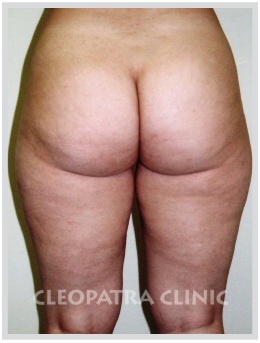 liposuction of the hips, outer, inner thighs and knees