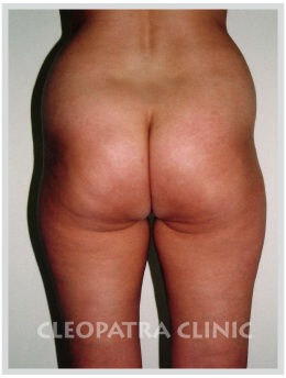 liposuction of hips, external, inner thighs and abdomen