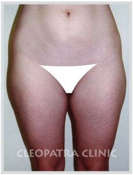 liposuction of hips, external, inner thighs