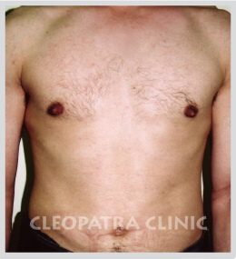 reduction of male breasts by liposuction and removal of enlarged mammary gland - 3 months after the procedure