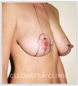 lifting of dropped breasts sketch of surgical procedure