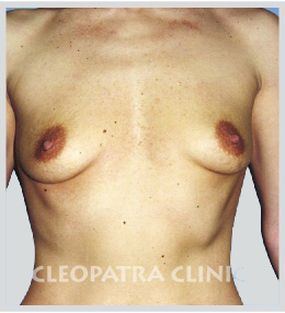 Magnification - round silicone implants under the gland, scar under the breasts
