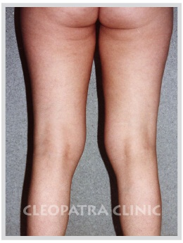 knee liposuction