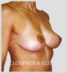 raised breasts straight line of lower breast margins is due to oblique fibrosis