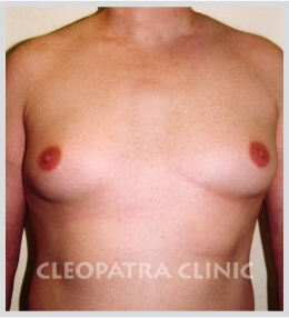 reduction of male breasts