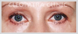 Lower eyelid surgery with removal of fatal prolapse