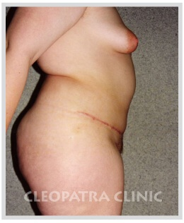 removing excess skin and fat by bikini cut with muscle suture, with navel shifting