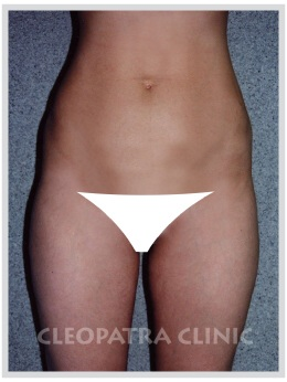 liposuction of the external thighs and abdomen
