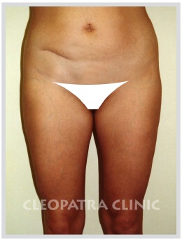 liposuction of abdomen with correction of the scar after the gut