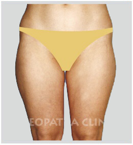 liposuction of the outer and inner thighs