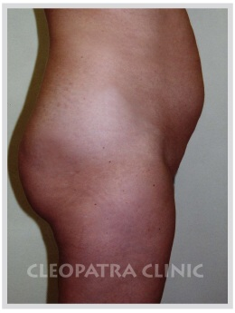 liposuction of the abdomen free - without surgical removal of the skin